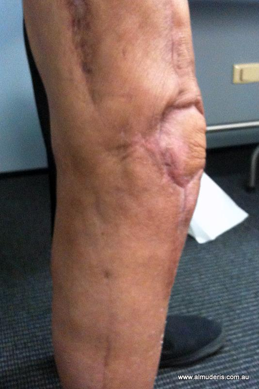 how is patellofemoral arthroplasty coded
