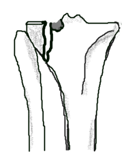 a fracture of the lateral tibial plateau with a vertical split and commonution