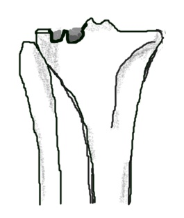 a fracture of the lateral tibial plateau with depression in the joint surface