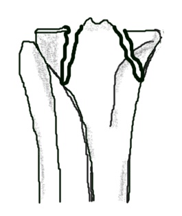 a fracture of both medial and lateral tibial plateaus