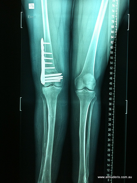 Varising Distal Femur Osteotomy Xrays