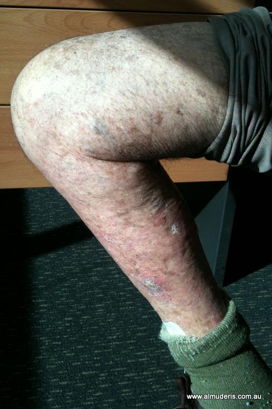 Knee Arthroplasty Post Op