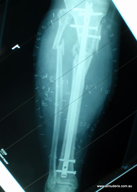 Tibia Fracture Post Op And Xrays