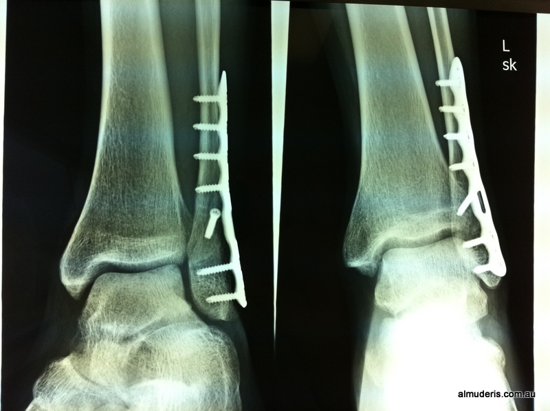 Ankle Fractures Xrays
