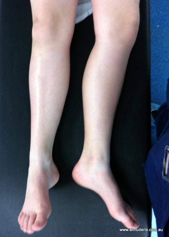 Slipped Capital Femoral Epiphysis: Diagnosis and Management