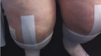 Bilateral Total Knee Replacement - 5 days post surgery