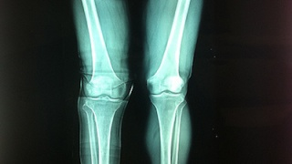 Compound Distal Femur Fracture Pre-Surgery Information