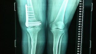 Compound Distal Femur Fracture Post Surgery Information