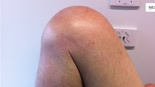 Surgical Notes On Knee Arthroplasty Techniques