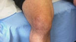 Knee Arthroscopy - 6 weeks post surgery