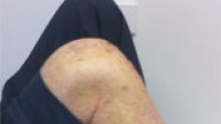 Uni-Compartmental Knee Replacement - 2 weeks post surgery