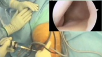 Meniscal Repair Arthroscopically - Knee