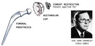 History of Hip Replacement