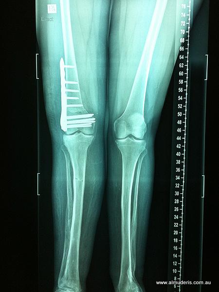 Varising Distal Femur Osteotomy Xrays